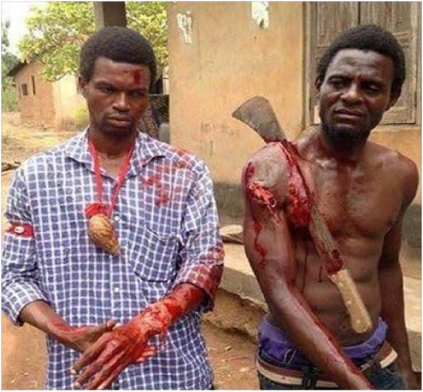 Two Nigerian Christian men seek medical help–one with a machete still lodged in his shoulder–after muslim herders attacked their village.