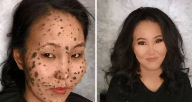 abandoned at birth because of skin deformities woman gets makeover